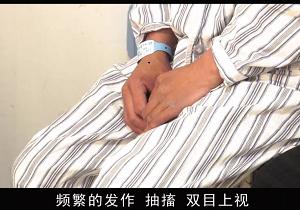 """""""醒脑开窍""""治疗后,癫痫呆子终于清醒了!北京军海医院董巧娥癫痫专家"""