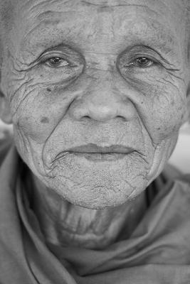 老年人癫痫症的治疗方法是什么